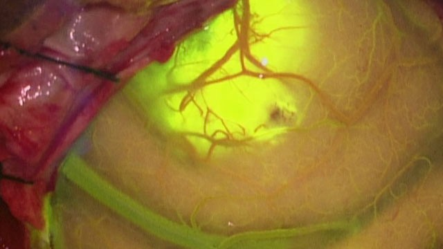 PHOTO: Using a special, glowing dye and equipment, surgeons can remove brain tumors more accurately than ever before.