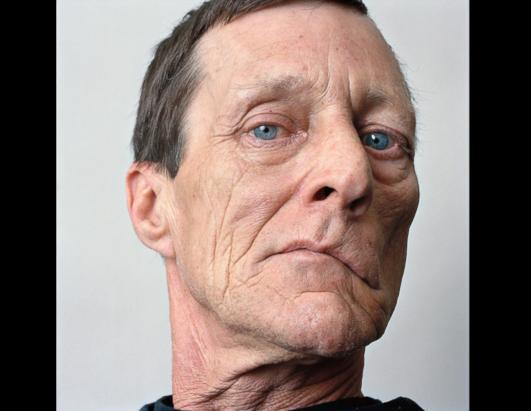 COCK! congenital facial nerve palsy very horny,wow