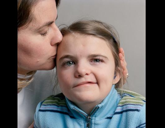 Canot congenital facial nerve palsy can