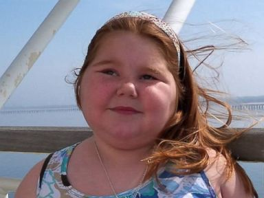 PHOTO: Alexis Shapiro developed hypothalamic obesity after having a brain tumor removed.