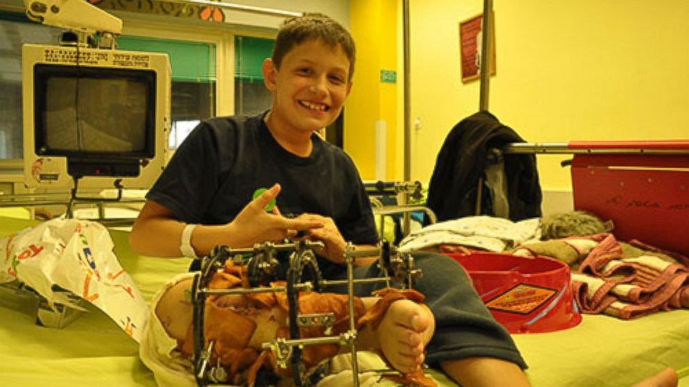 PHOTO: 11-year-old Amit Vigoda will soon have his leg amputated so he can be a normal boy.