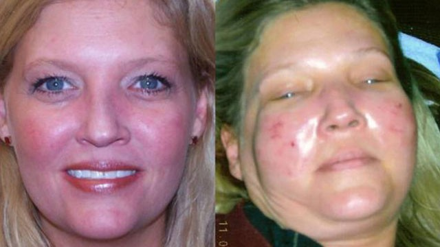 PHOTO:Daphne Carroll says she was burned by a laser facial.