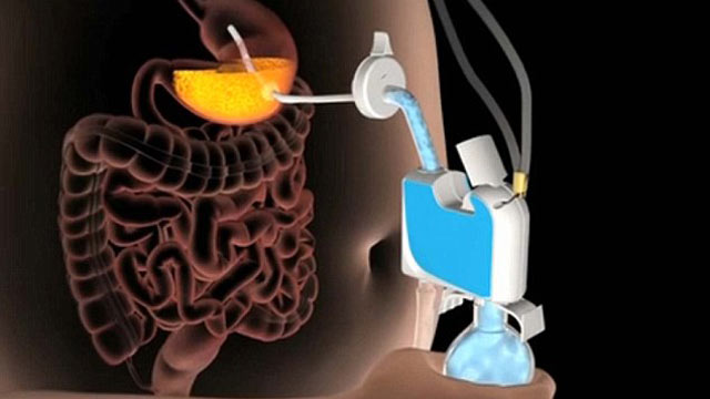 PHOTO: The AspireAssist stomach pump sucks food out of the users belly before the body can fully digest it.