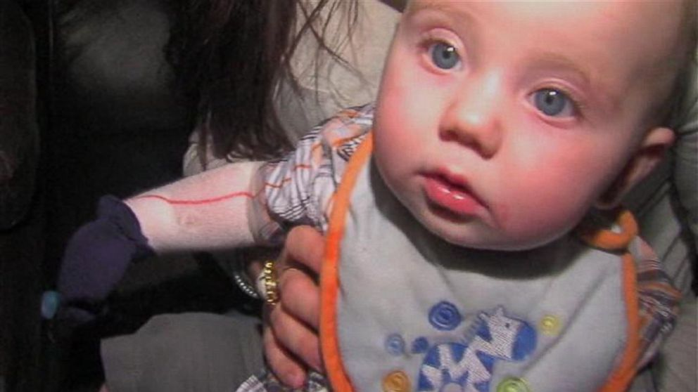 PHOTO: Doctors are 99 percent sure baby Lane has a rare skin condition called epidermolysis bullosa.