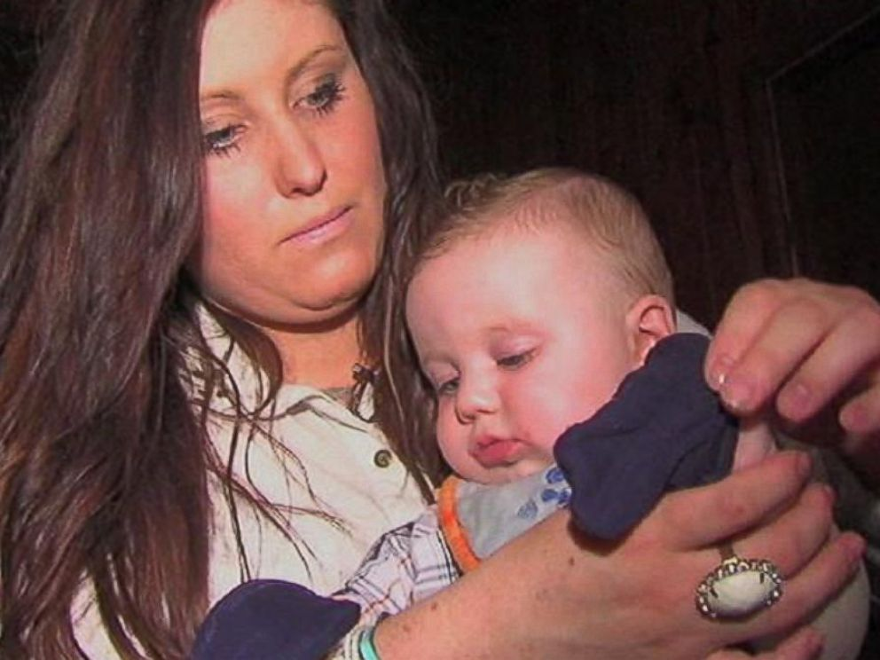 PHOTO: Brittany Weingart puts mittens on her 6-month-old son to keep his hands from blistering.