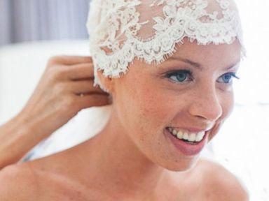 Bald Bride Planning Honeymoon After Beating Cancer