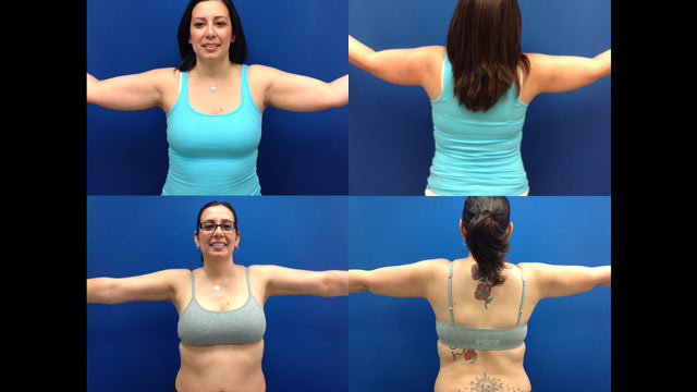 PHOTO: These photos show Dr. Aaron Rollins patient Blanca Ramirez before and after he performed his patented liposuction procedure on her arms.