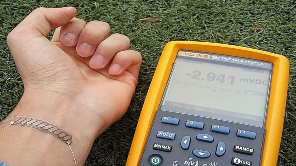 PHOTO: The thermoelectric generator is lightweight and may be worn on the wrist.
