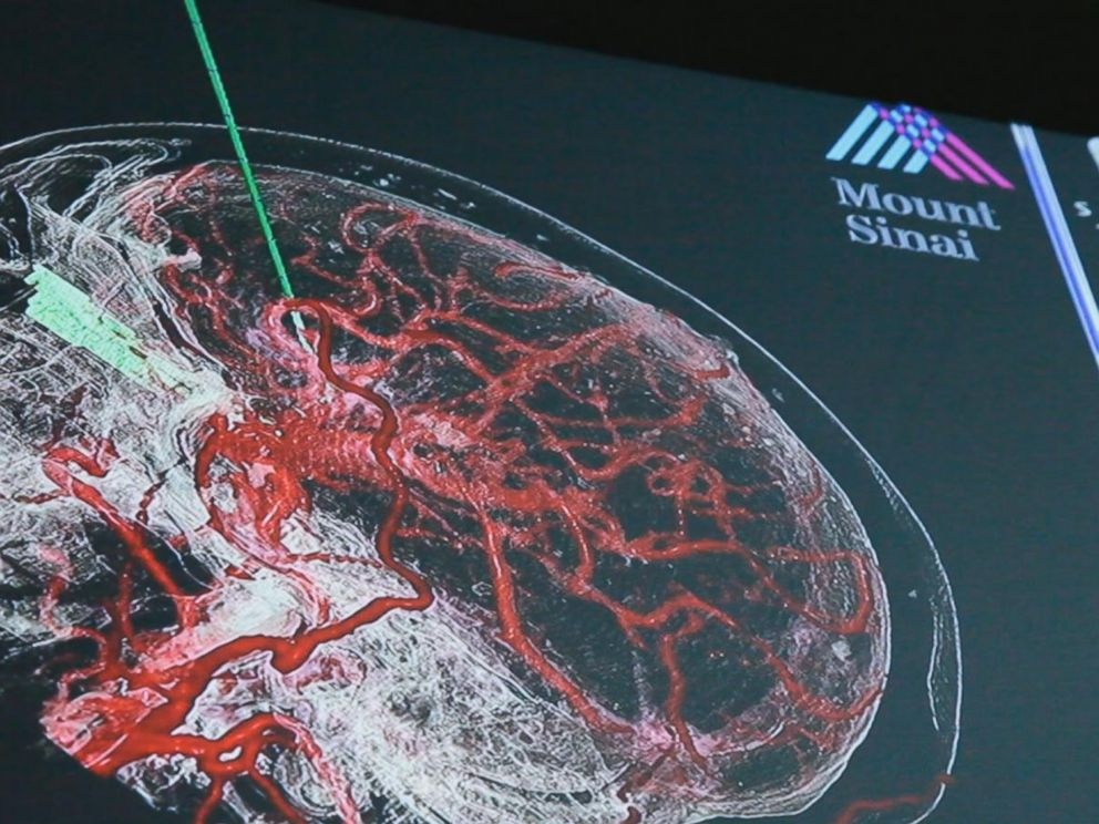 PHOTO: A surgeon uses VR and Augmented Tech to create Road Map during brain surgery.