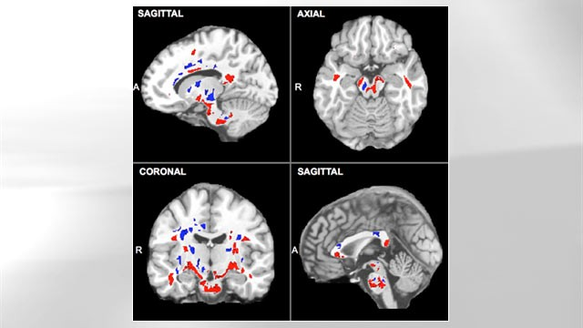 PHOTO: A set of brain scans showing evidence of concussions. The areas in red show where the concussion damage is present.