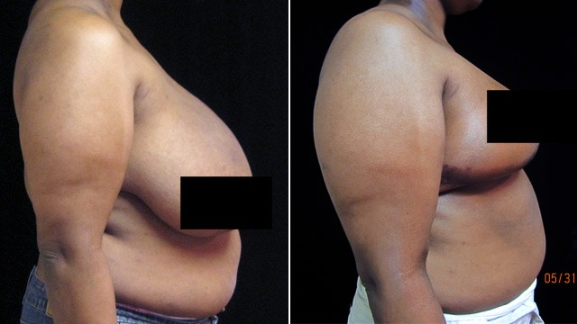 PHOTO: Before and after breast reduction surgery
