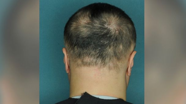 PHOTO: Alopecia is an autoimmune condition that causes patchy baldness.