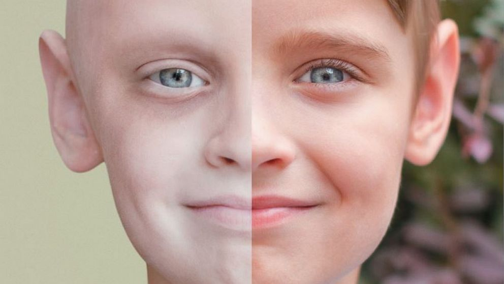 PHOTO: Noahs stunning before and after photos are part of a campaign for Childrens Cancer Center at University of Mississippi Health.