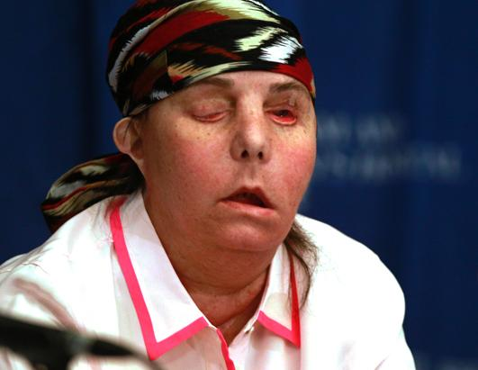 Face Transplant Patient's Transformation