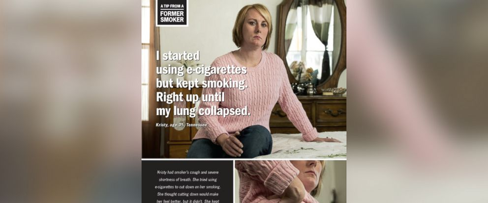 PHOTO: This CDC ad features Kristy, 35, who tried using e-cigarettes to quit smoking cigarettes but ended up using both products instead of quitting. She suffered a collapsed lung, and was diagnosed with early COPD.