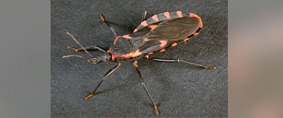 PHOTO:The Chagas disease is usually spread to humans via triatomine bugs that can spread the parasitic infection.