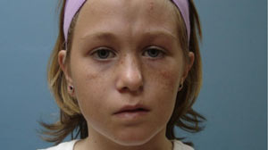 PHOTO Christine Honeycutt, 11, suffers from Parry-Romberg Syndrome, a rare condition that causes half the face to waste away.