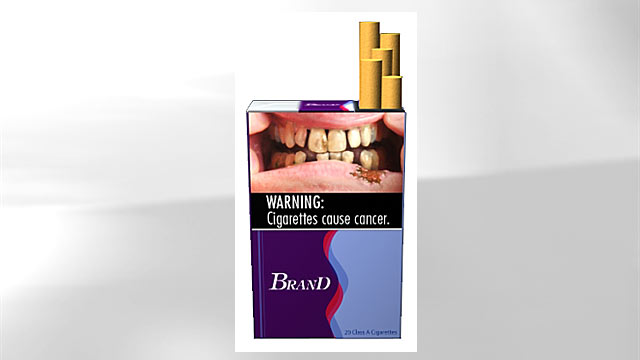 PHOTO: A proposed graphic health warning for cigarette packages and advertisements suggests the increased risk of health problems among smokers by depicting a man whos teeth has decayed.