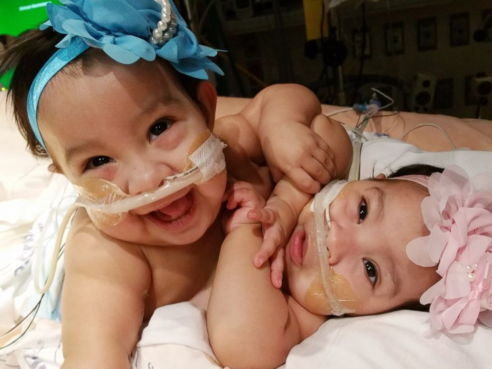 PHOTO: Ten-month-old twins Knatalye and Adeline Mata were conjoined at birth, and underwent a highly complicated separation surgery at Texas Childrens Hospital in Houston, Texas.