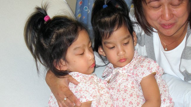 PHOTO: Conjoined twins Angelica and Angelina Sabuco shortly before surgery with their aunt.
