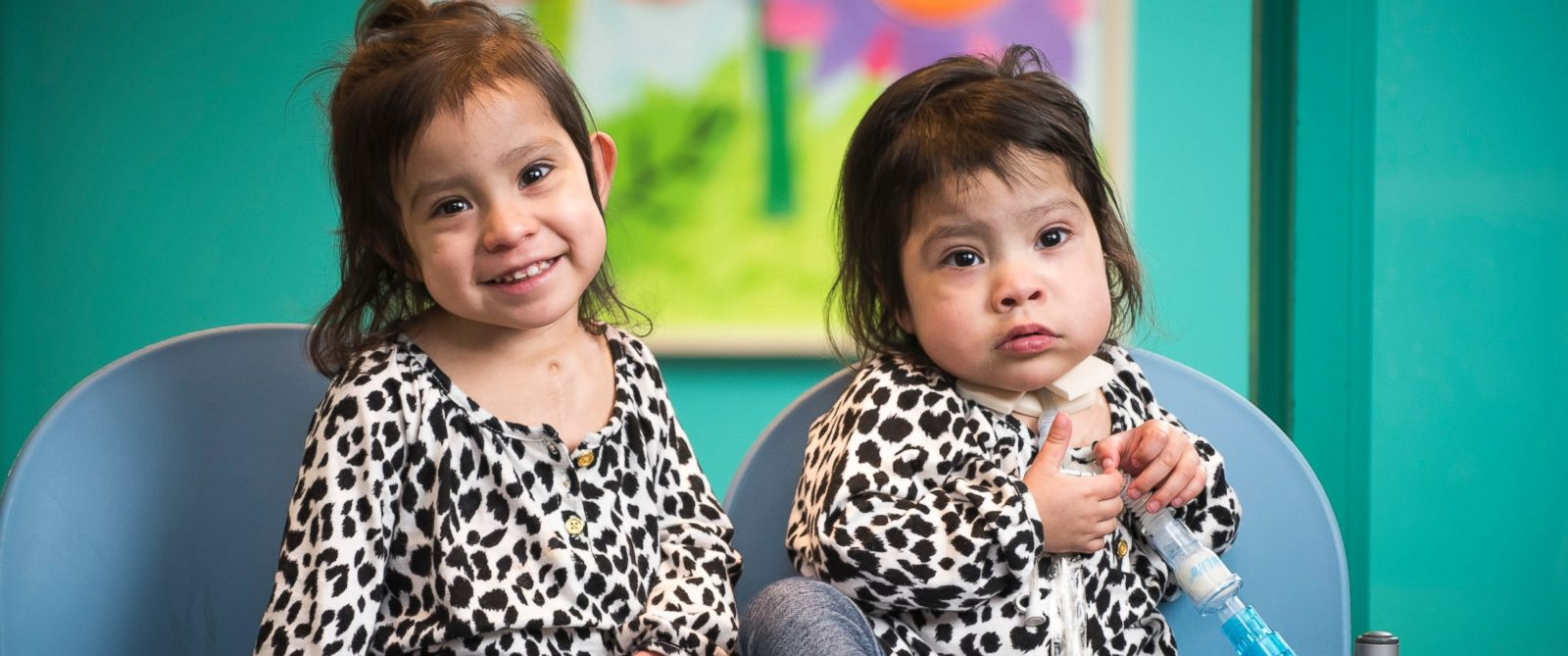 Knatalye Hope and Adeline Faith visiting Texas Childrens a few weeks before the one year anniversary of their historic separation surgery.