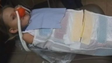 PHOTO: Dentistry practice defends use of restraints on child.