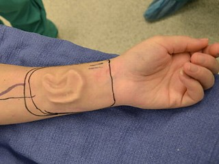 Doctors Grow New Ear on Arm