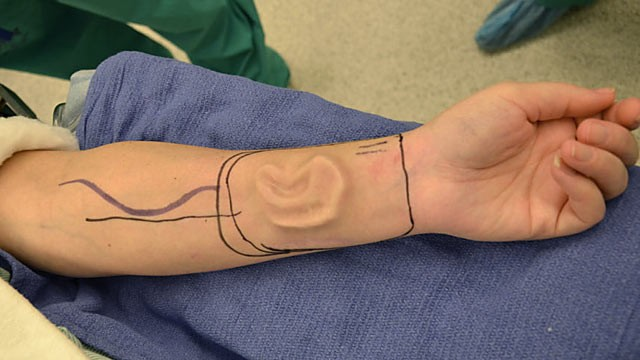 PHOTO: An ear is shown growing under the skin of the arm of Sherrie Walter during a medical procedure.