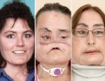 Photo: First U.S. Face Transplant Patient Appears Before Cameras: Connie Culp, 46, Said She Is Grateful for the Ways the Surgery Changed Her Life