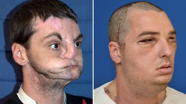 "PHOTO: ""Richard Norris, 37, before and after his operation. The surgery was the most extensive full face transplant to date."""