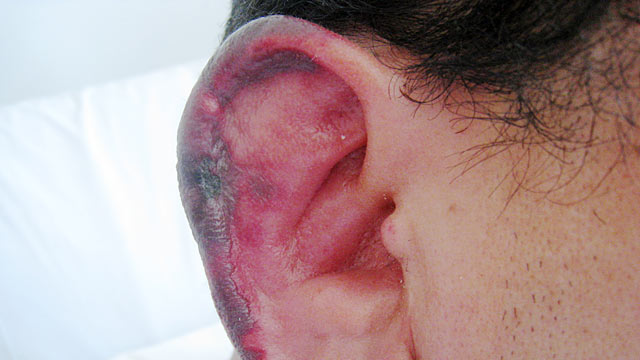 PHOTO: The veterinary drug can rot the flesh of the nose and ears