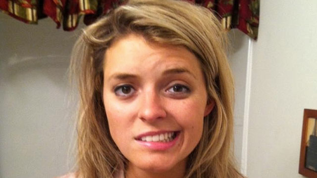 PHOTO: Mary King, 25, couldnt smile, blink or move the right side of her face after an attack of Bells Palsy.