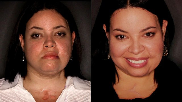 PHOTO: Ilianexy Morales was knifed more than 100 times by a possessive boyfriend and required multiple surgeries before getting free plastic surgery from Face to Face.