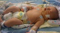 Houston Tracy, 12 days old, was denied health coverage for a pre-existing condition. Doctor discovered a life-threatening problem with his heart when he was born, and after surgery Tracy is expected to fully recover.
