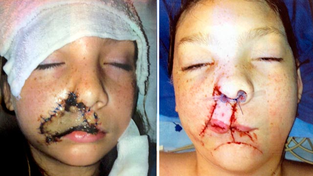 PHOTO: Before and after plastic surgery images of Jacklyn Tucker, an 11-yr-old who was attacked by a dog, at a press conference at Joe DiMaggio Childrens Hospital in Hollywood, Fla. on July 6, 2012.