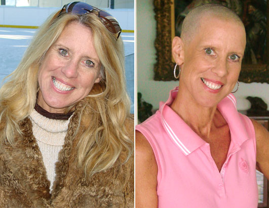 Women Who Say Mammograms Before 50 Saved Their Lives