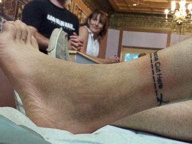 Man Documents 'Bucket List' with Leg Before Amputation