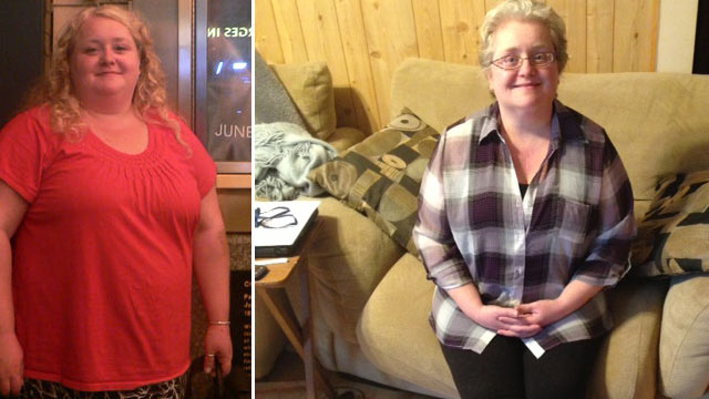 PHOTO: Kathleen Anderson of Chicago quit smoking and lost 100 pounds, but it was a 10-hour surgery that allowed her to breathe again and saved her life.