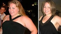 Photo: TEENS WHO GET GASTRIC BANDING ACHIEVE SIGNIFICANT WEIGHT LOSS SAFELY