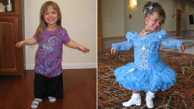 PHOTO: 8-year-old beauty pageant veteran, Lacey-Mae Mason, has achondroplasia, the most common type of dwarfism.