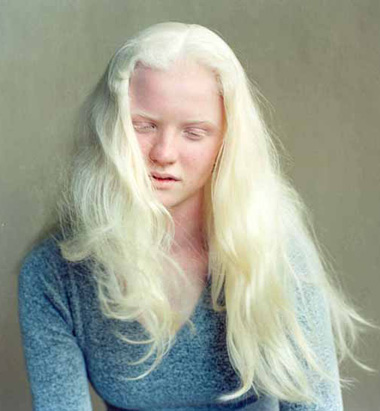 Beauty of Albinism
