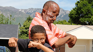 Photo: Tumor Devours Utah Mans Face, But Not Spirit: Film Follows Maurice Simpson Who Fights Ever Growing Tumors That Took One Eye