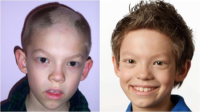 PHOTO: Before and after photos of a boy with trichotillomania, a condition that causes sufferers to pull out their own hair.
