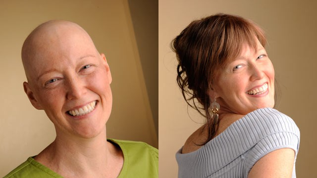 PHOTO: Before and after pictures of breast cancer survivor Nancy Lumb.