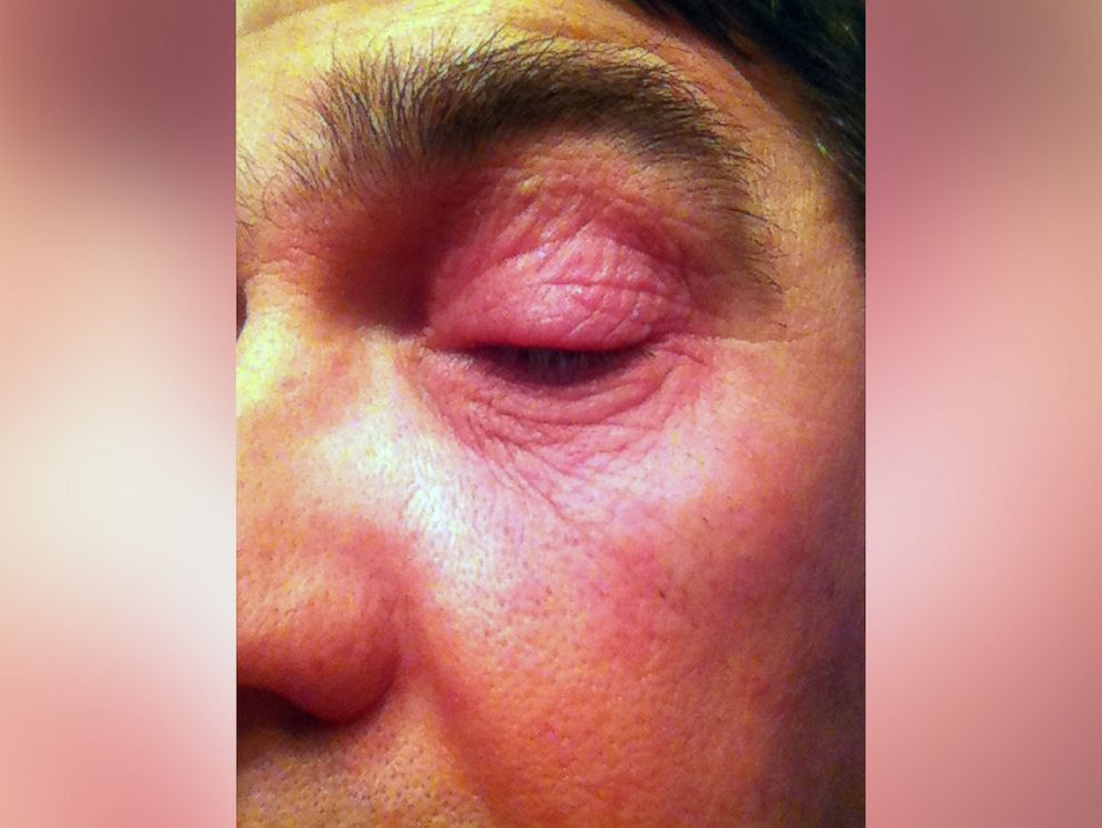 PHOTO: Mike Dressers eye lid, swollen from newspaper ink.