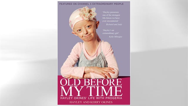 PHOTO: Old Before My Time: Hayley Okines' life with progeria
