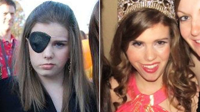 PHOTO: In 2008, Caitlin Cowen suffered partial paralysis after undergoing brain surgery to remove a tumor from the right side of her brain stem.