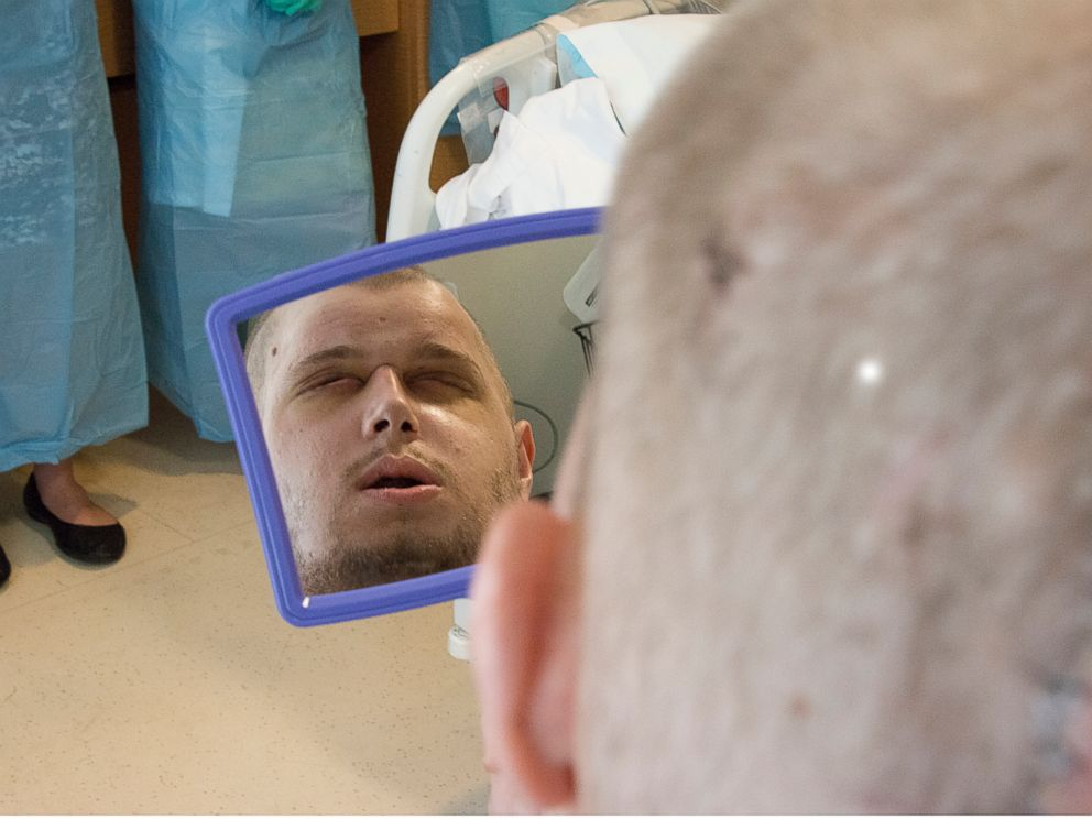 Pat Hardison sees himself for the first time on Aug. 24, 2015, after his face transplant surgery at NYU Langone Medical Center.