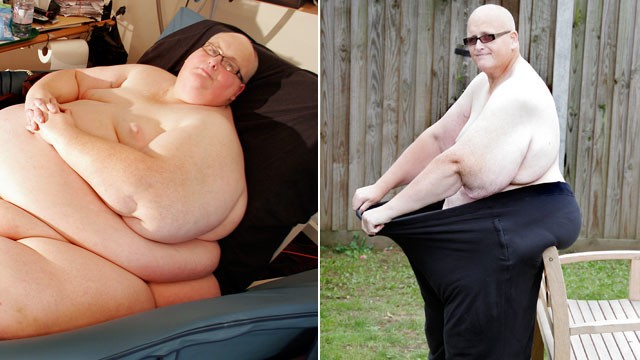 PHOTO: Paul Mason, left, is pictured at his heaviest. On the right, Mason after he lost 630 lbs.