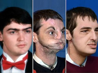 Face Transplant Patient Delights in Transformation